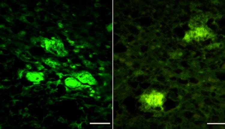 Researchers create first Artificial human prion | Tech News