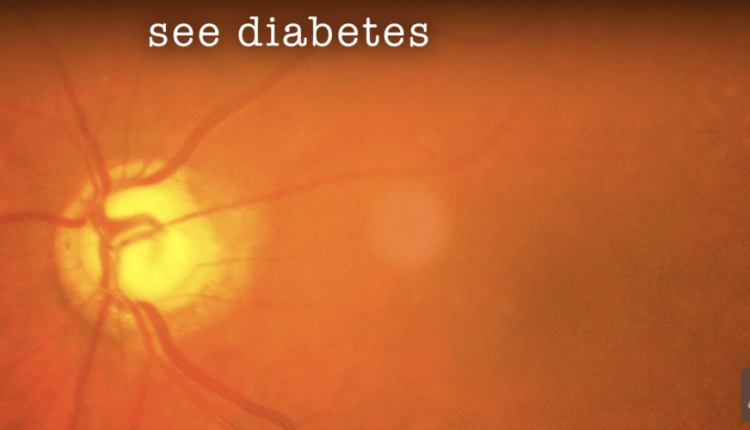 Deep Learning for Detection of Diabetic Eye Disease – Info AI