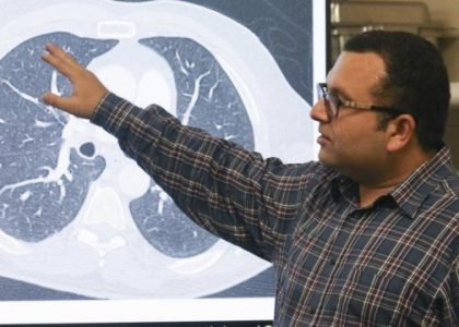 Engineers develop artificial intelligence system to detect often-missed cancer tumors AI| Artificial intelligence