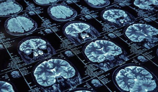 Facebook, NYU Will Use Artificial Intelligence for Faster MRIs AI| Artificial intelligence