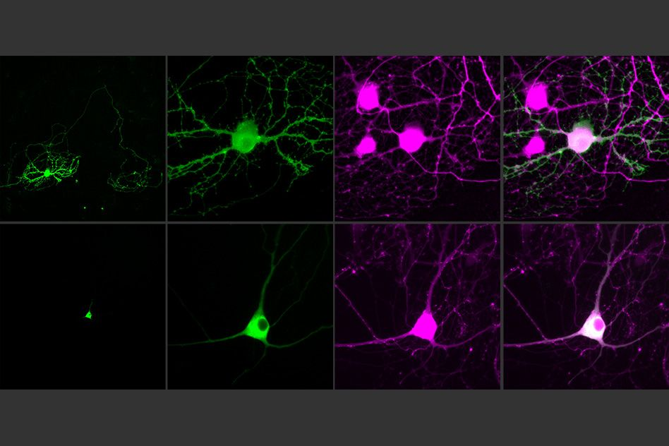 Next-generation optogenetic molecules control single neurons | Social, ONLY infoTech