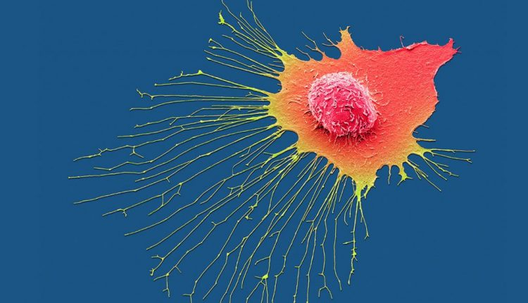 Cancer-tracking AI could save lives by predicting how tumours evolve | Artificial intelligence