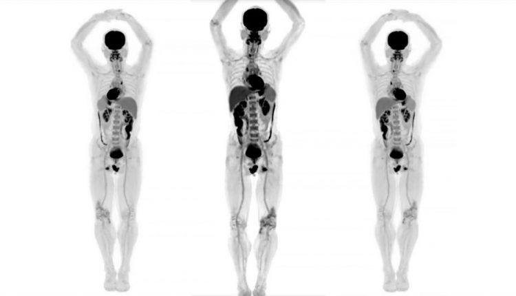 See the 3D Images Produced by the First Full-Body Medical Scanner