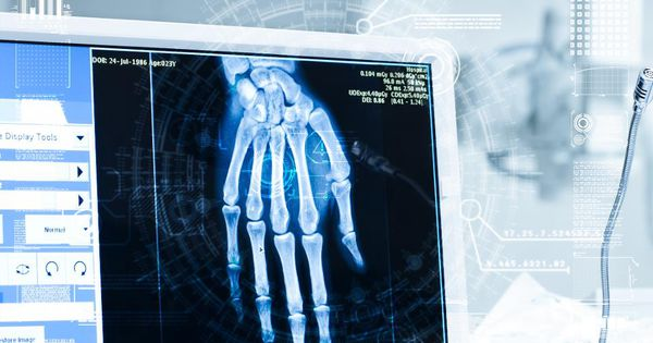 How AI can predict an abnormal chest X-Ray